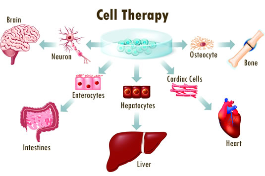 Cell Therapy with Stem Cells