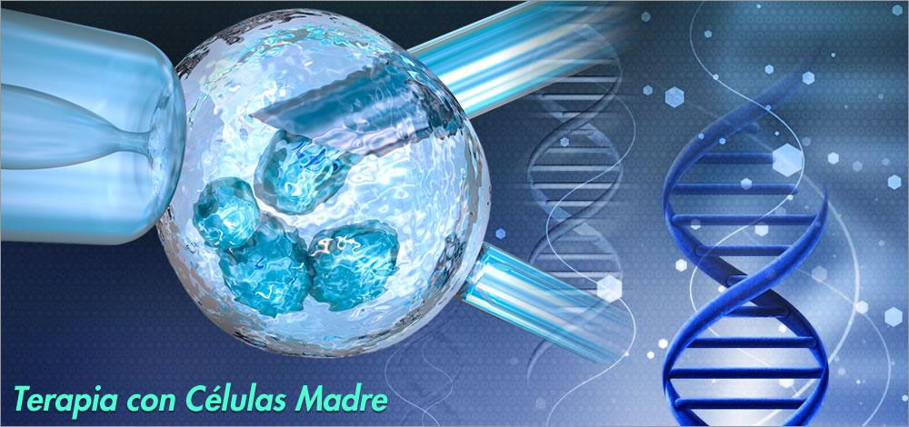 terapia con células madre