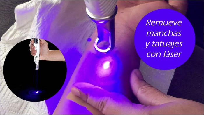 remover manchas y tatuajes con laser